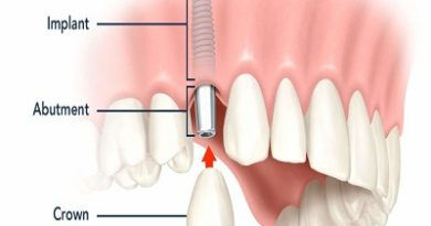Dental Implant Abutment Systems Market Set to Surge Significantly During 2017 – 2025 : Persistence Market Research