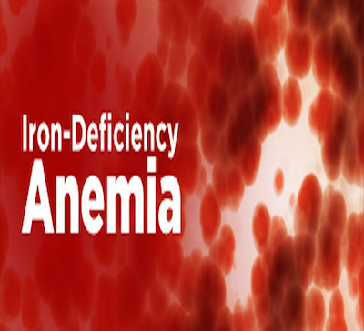 Iron deficiency anemia one of the top causes of disability in India