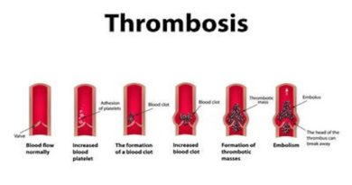 Thrombosis cases have shown a four-fold increase in the last 10 years