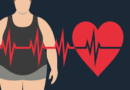 """Obesity is not """"healthy"""" it rather is a serious """"health condition"""""""